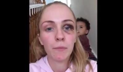 Emma Myrphy mujer golpeada por su esposo