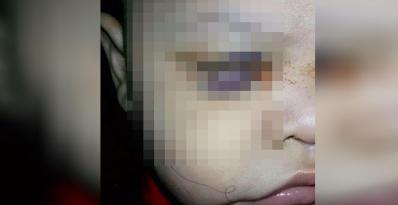 Medico extirpa ojo sano a niño