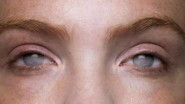 Ceguera cortical. Anton-Babinski: El síndrome de ver sin visión. Imagen obtenida de: https://www.monitorexpresso.com/wp-content/uploads/2017/05/ceguera_PLYIMA20160310_0031_4.jpg