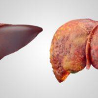 Trasplantes dominó, una solución contra la amiloidosis hereditaria