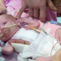 Niña nace con el corazón fuera del cuerpo y sobrevive en Reino Unido