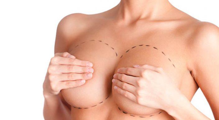 Gobierno pondrá implantes mamarios gratis a mujeres pobres en la India