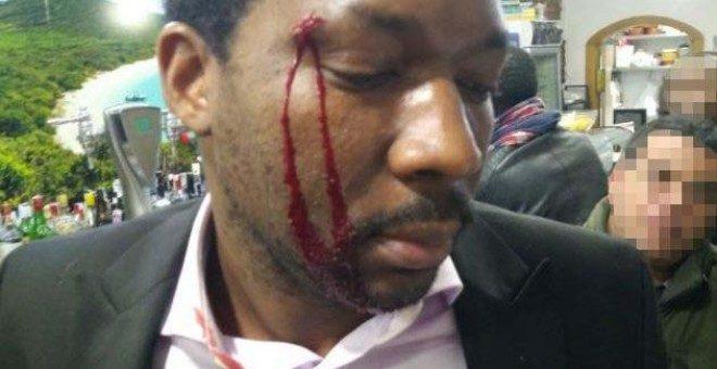 Racismo en España: mujer ataca a botellazos a actor porque