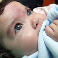 IMSS recomienda evitar remedios caseros y automedicación para tratar la varicela