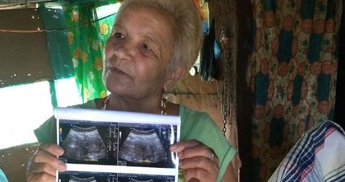 Mujer sinaloense de 70 años no está embarazada; tiene un tumor: IMSS
