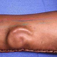 Joven pierde su oreja; médicos cultivaron una en su brazo para trasplantarla