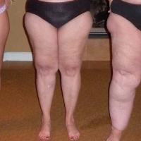 ¿Tienes los brazos y las piernas gordas? podría ser lipidemia y ya fue reconocida por la OMS como una enfermedad