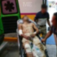 Sujeto termina herido de bala mientras intentaba vender su bicicleta, en Zamora