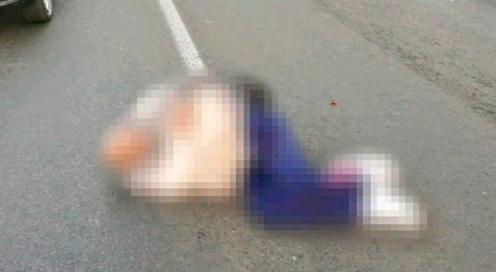 Vehículo atropella a peatón y lo deja herido en el periférico de Morelia, Michoacán